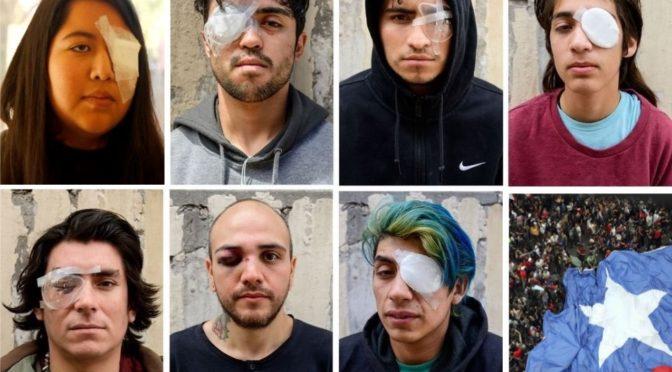 Carta de padre cuya hija perdió un ojo como consecuencia de la represión ordenada por Piñera