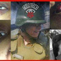 Denuncian caso de niña con ceguera bilateral progresiva por golpe de Suboficial Luis Castillo